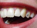 tandarts_inzetten_diamant